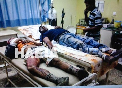 Trabajadores heridos